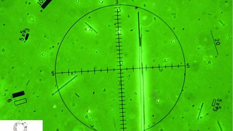 The Membrane Filter Method